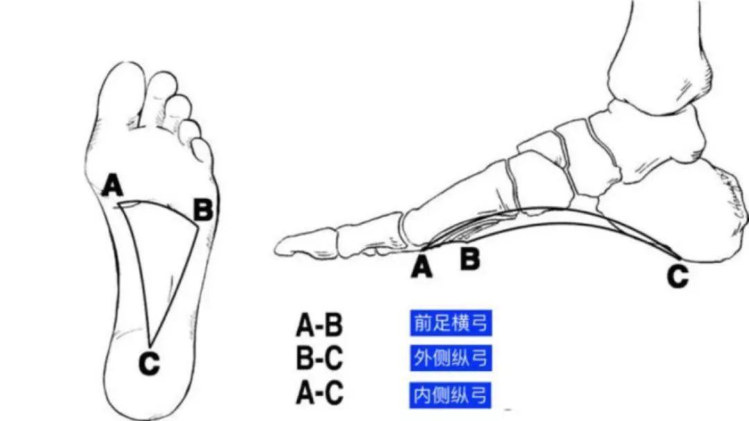 脚跟骨_最容易被忽视的「足弓」问题,却足以影响全身 - 知乎