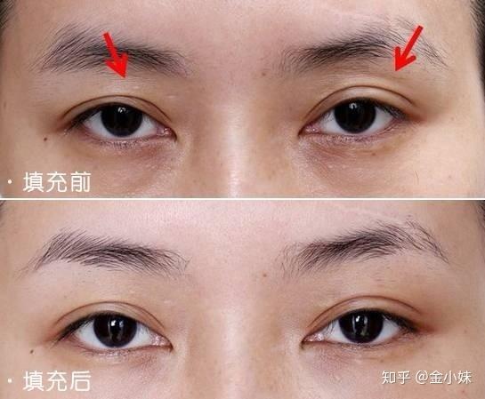 肌肉注射定位_全切双眼皮修复有多难? - 知乎